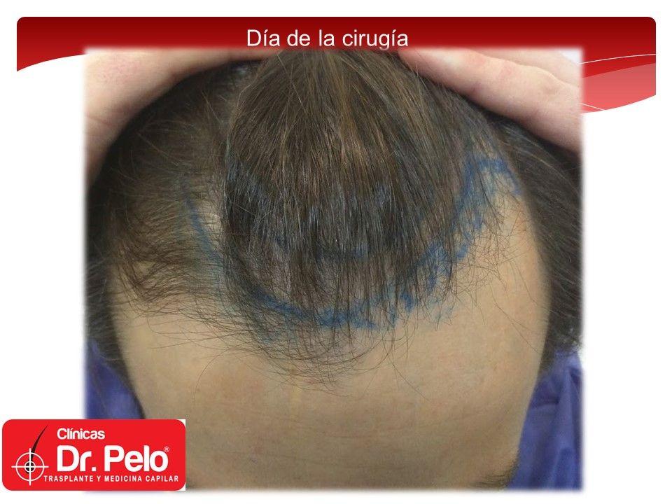 [Imagen: injerto-capilar-fue-2.jpg]
