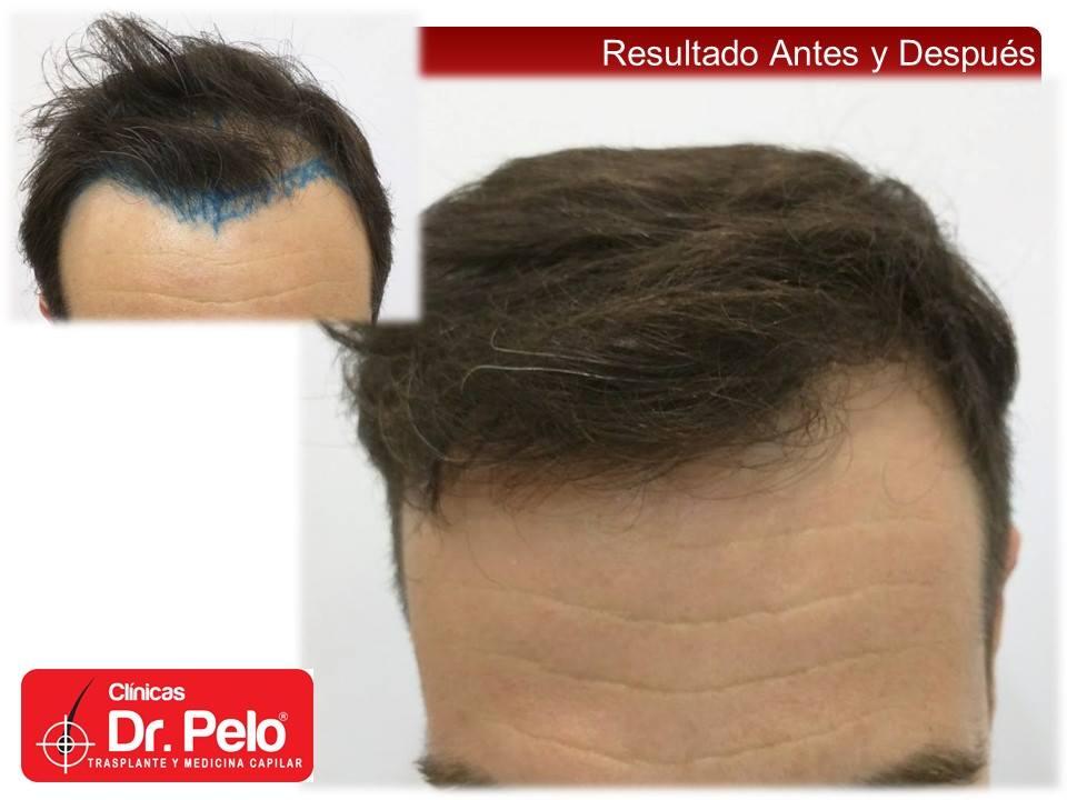 [Imagen: injerto-capilar-fue-20-1.jpg]