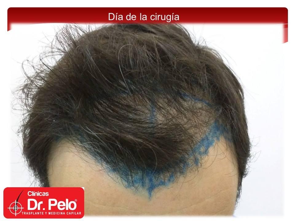 [Imagen: injerto-capilar-fue-3-2.jpg]