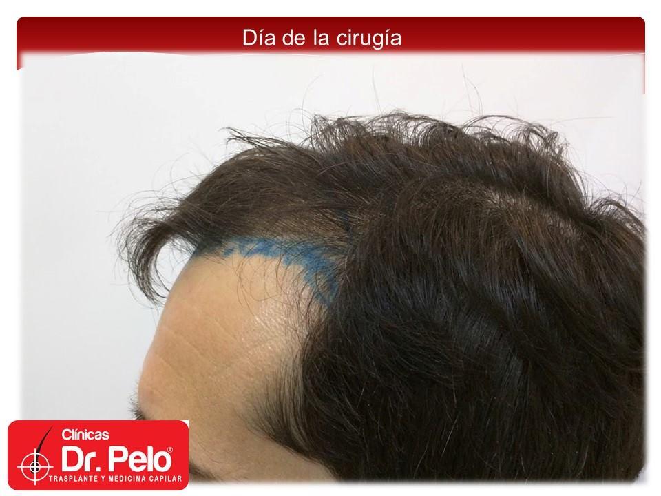 [Imagen: injerto-capilar-fue-4-2.jpg]