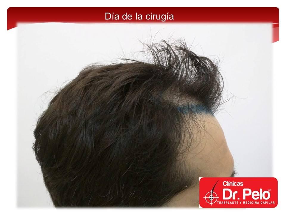[Imagen: injerto-capilar-fue-6-2.jpg]