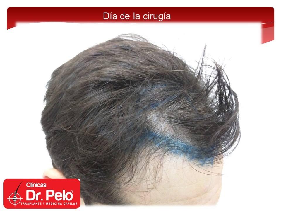 [Imagen: injerto-capilar-fue-7-2.jpg]