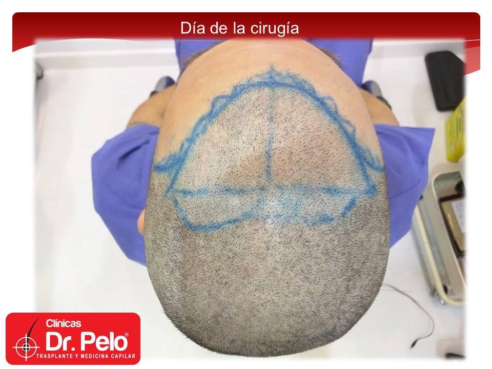 [Imagen: injerto-capilar-fue-9-2.jpg]