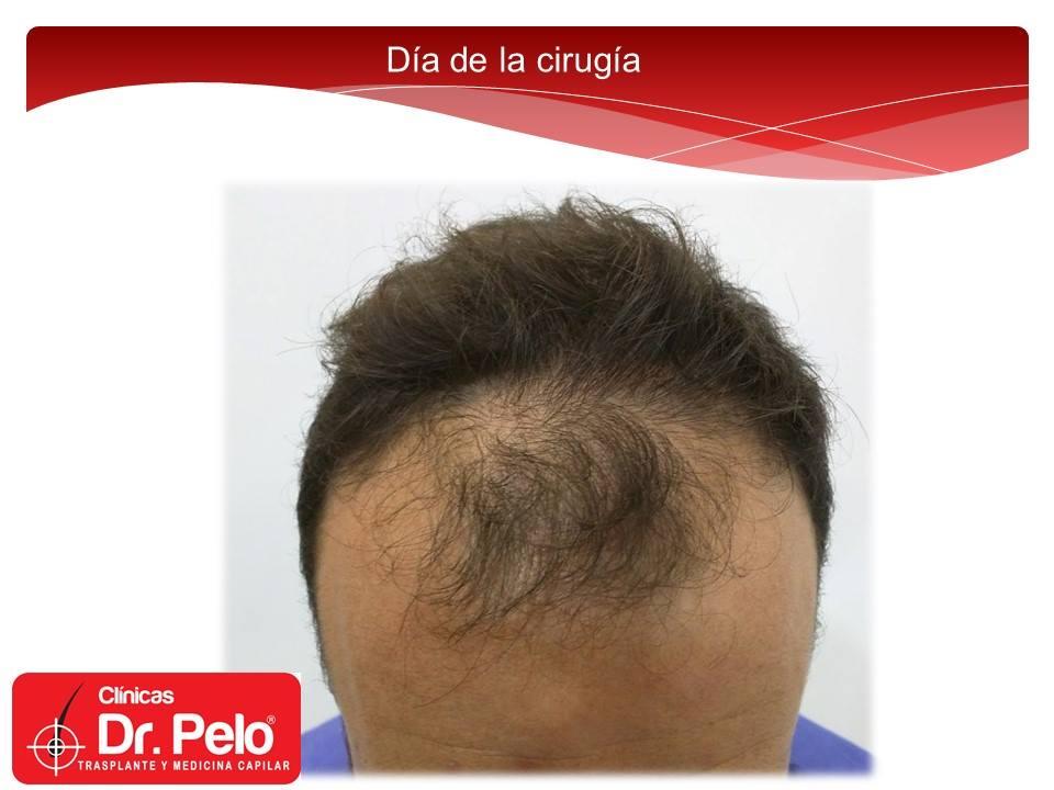 [Imagen: injerto-capilar-fue-clinicas-dr-pelo-dr-...or-1-1.jpg]