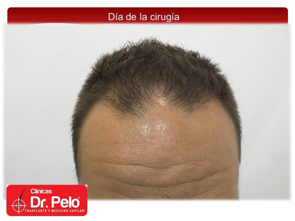 [Imagen: injerto-capilar-fue-clinicas-dr-pelo-dr-...nior-1.jpg]