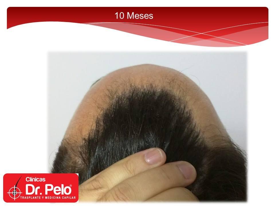 [Imagen: injerto-capilar-fue-clinicas-dr-pelo-dr-...r-10-1.jpg]