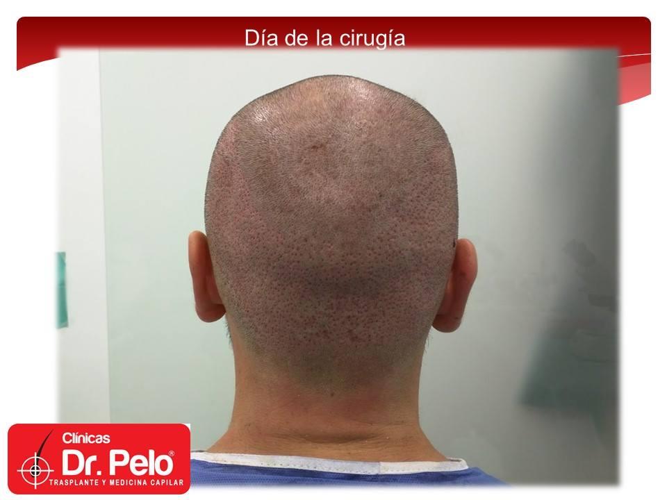 [Imagen: injerto-capilar-fue-clinicas-dr-pelo-dr-...ior-10.jpg]