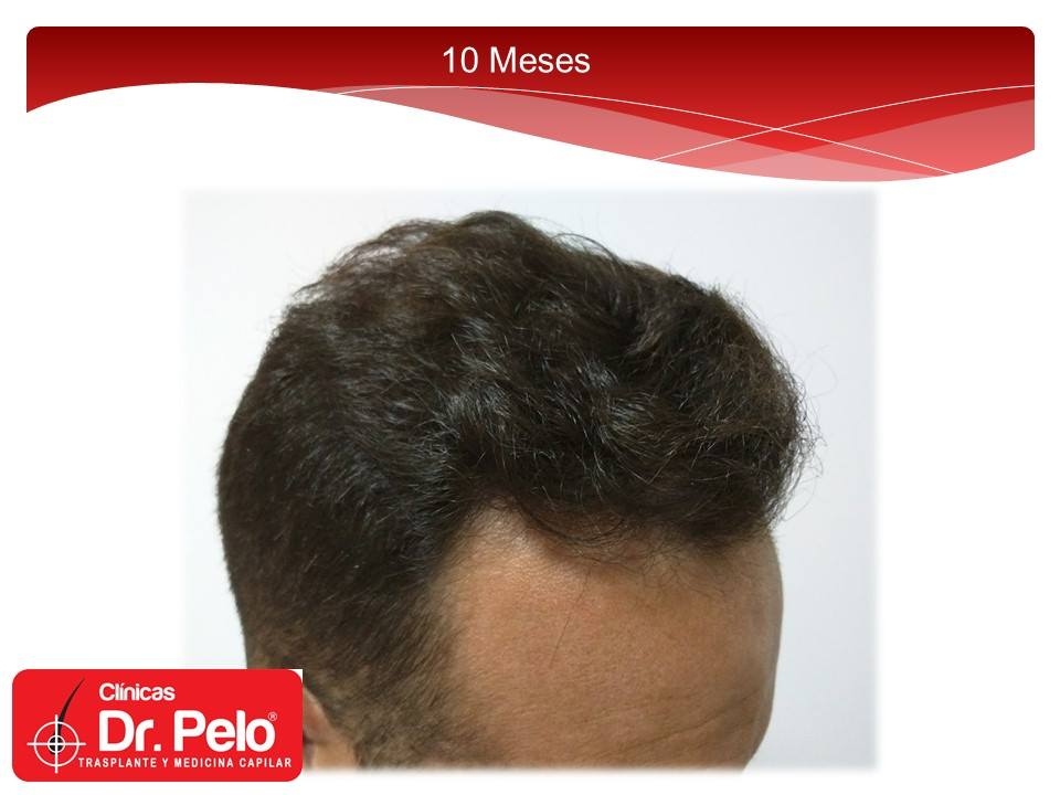 [Imagen: injerto-capilar-fue-clinicas-dr-pelo-dr-...r-11-1.jpg]