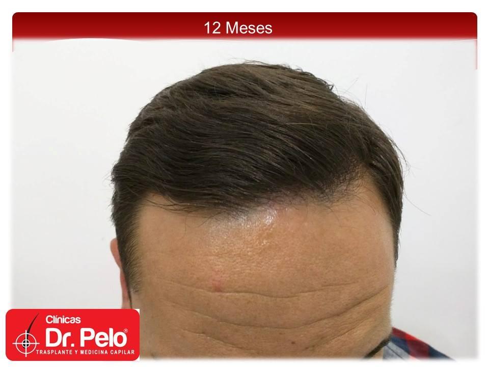 [Imagen: injerto-capilar-fue-clinicas-dr-pelo-dr-...ior-11.jpg]