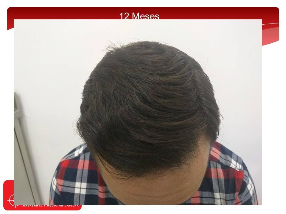 [Imagen: injerto-capilar-fue-clinicas-dr-pelo-dr-...ior-12.jpg]