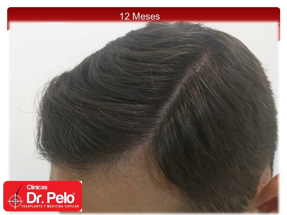 [Imagen: injerto-capilar-fue-clinicas-dr-pelo-dr-...ior-13.jpg]