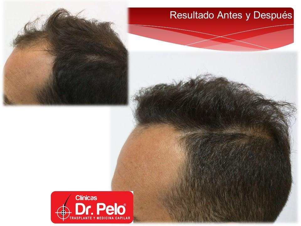 [Imagen: injerto-capilar-fue-clinicas-dr-pelo-dr-...r-14-1.jpg]