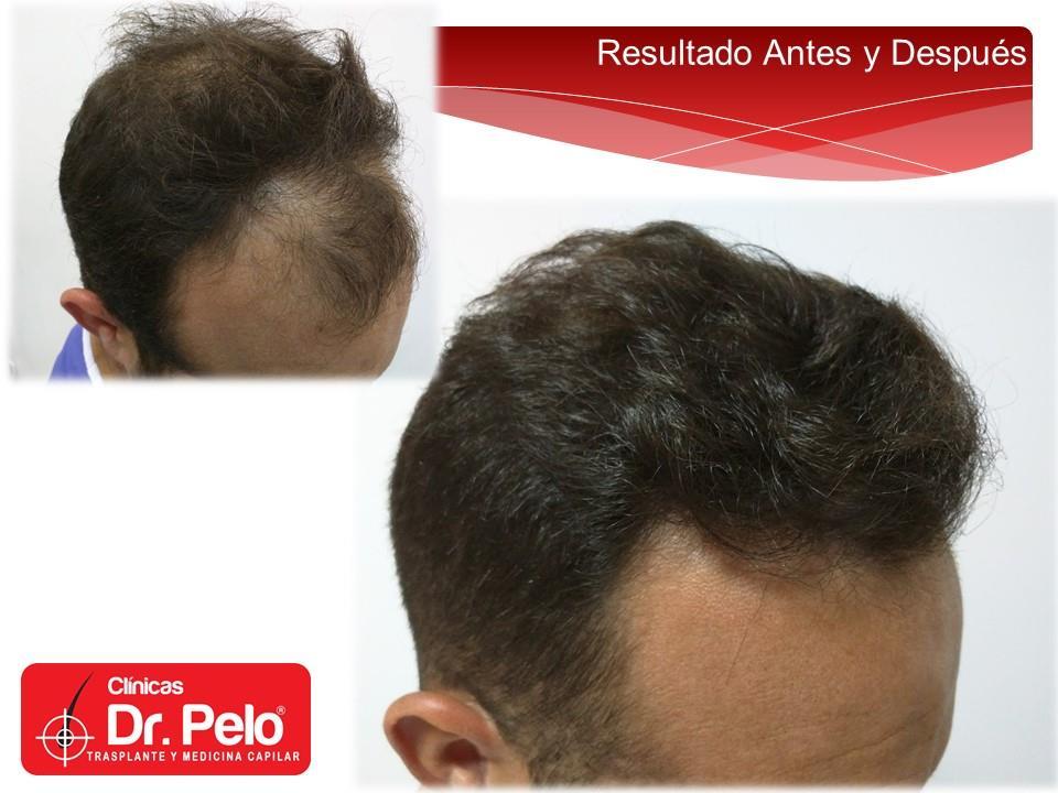 [Imagen: injerto-capilar-fue-clinicas-dr-pelo-dr-...r-15-1.jpg]