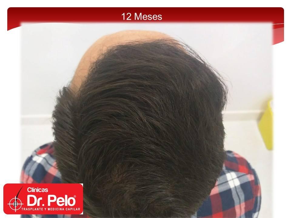 [Imagen: injerto-capilar-fue-clinicas-dr-pelo-dr-...ior-15.jpg]