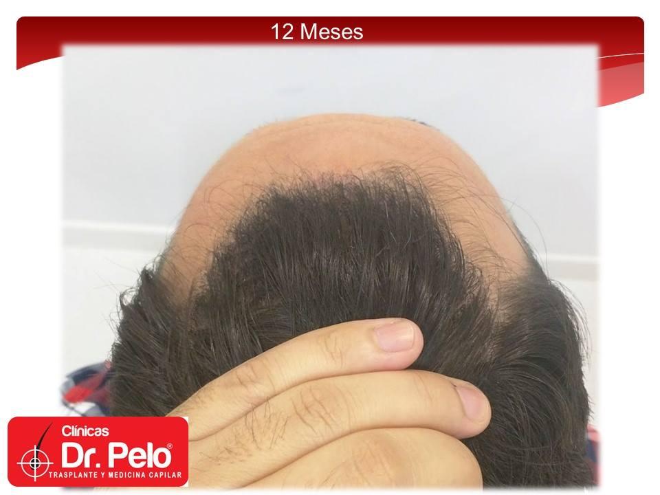 [Imagen: injerto-capilar-fue-clinicas-dr-pelo-dr-...ior-16.jpg]