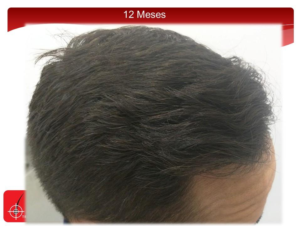 [Imagen: injerto-capilar-fue-clinicas-dr-pelo-dr-...ior-17.jpg]