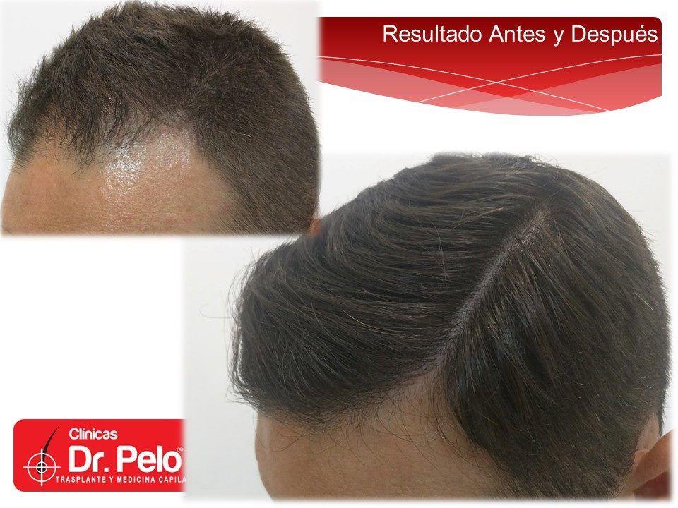 [Imagen: injerto-capilar-fue-clinicas-dr-pelo-dr-...ior-19.jpg]