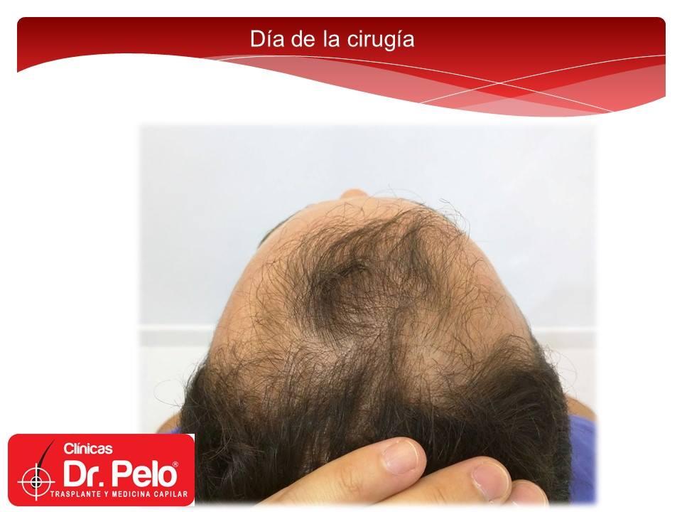 [Imagen: injerto-capilar-fue-clinicas-dr-pelo-dr-...or-2-1.jpg]