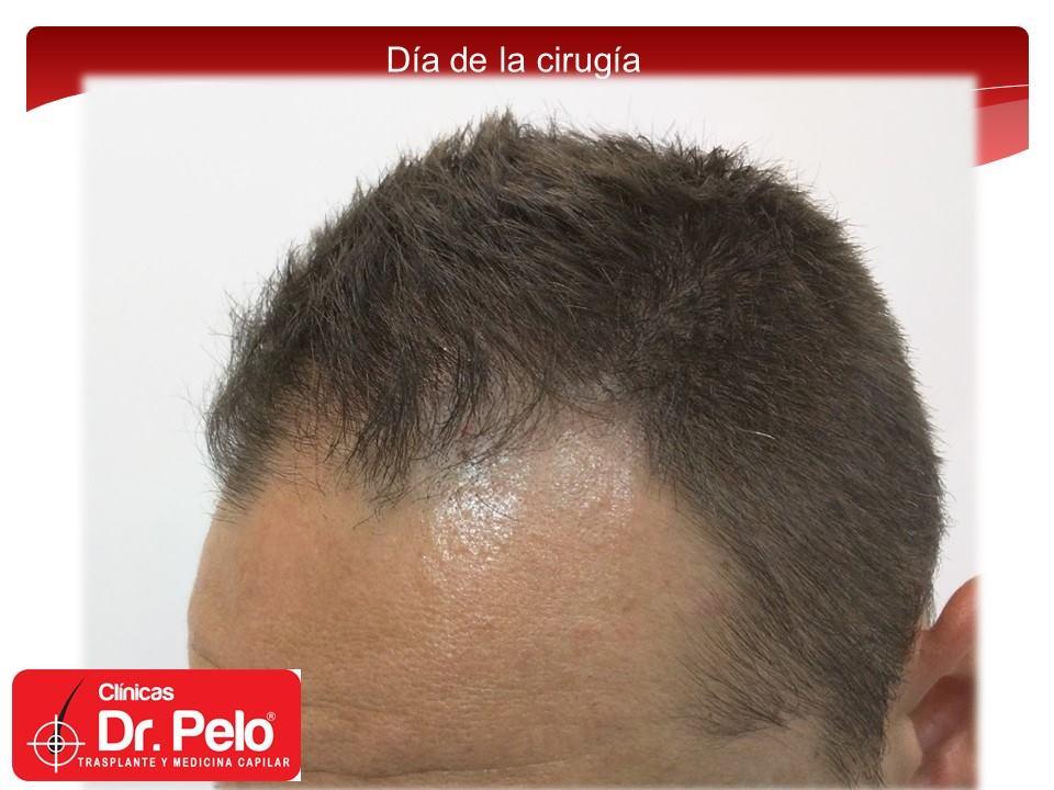 [Imagen: injerto-capilar-fue-clinicas-dr-pelo-dr-...nior-2.jpg]
