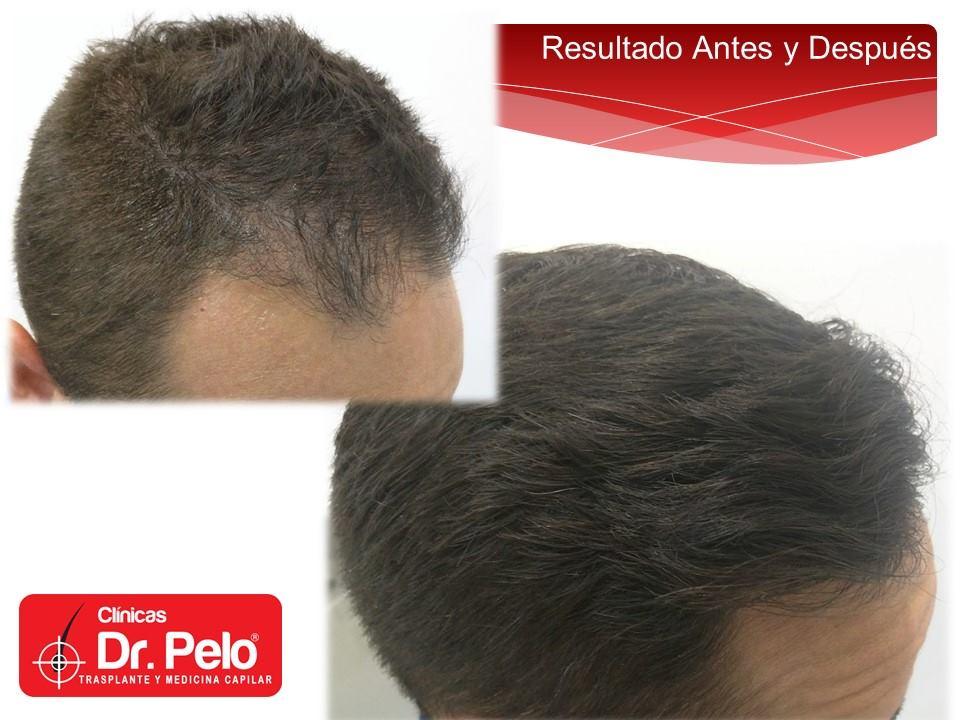 [Imagen: injerto-capilar-fue-clinicas-dr-pelo-dr-...ior-20.jpg]