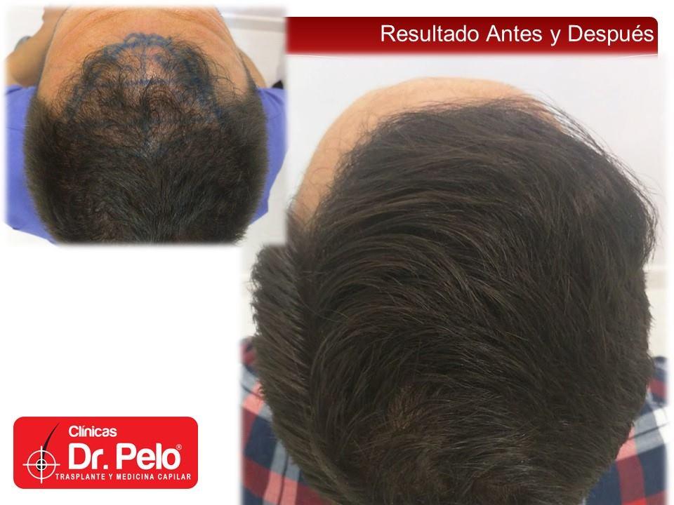 [Imagen: injerto-capilar-fue-clinicas-dr-pelo-dr-...ior-21.jpg]