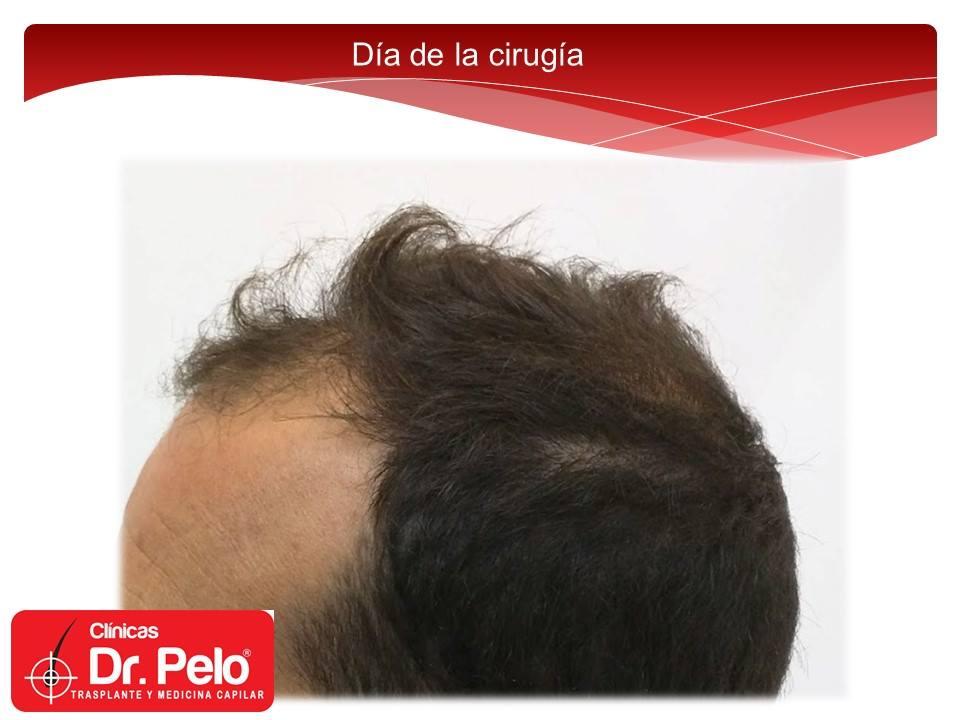 [Imagen: injerto-capilar-fue-clinicas-dr-pelo-dr-...or-3-1.jpg]