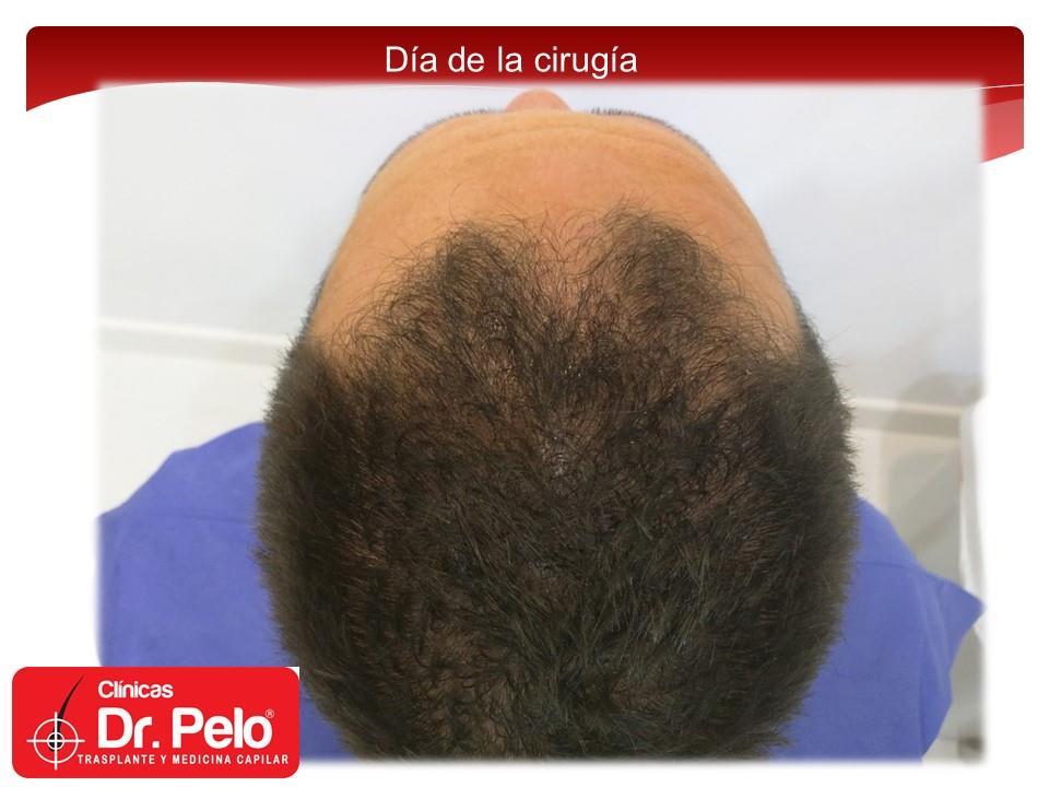 [Imagen: injerto-capilar-fue-clinicas-dr-pelo-dr-...nior-3.jpg]