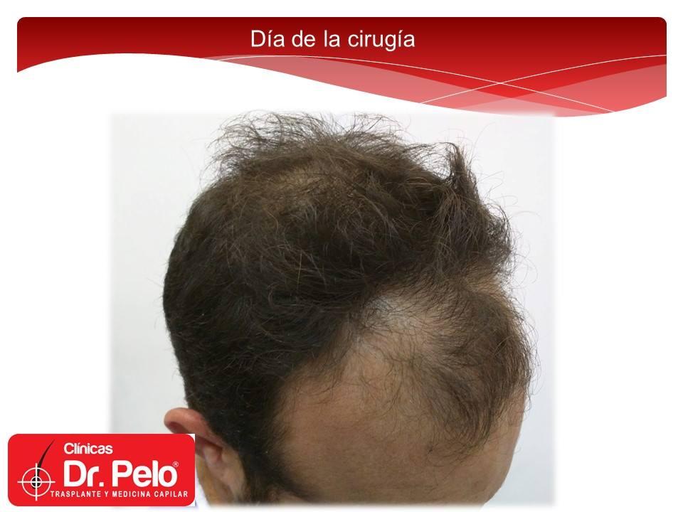 [Imagen: injerto-capilar-fue-clinicas-dr-pelo-dr-...or-4-1.jpg]