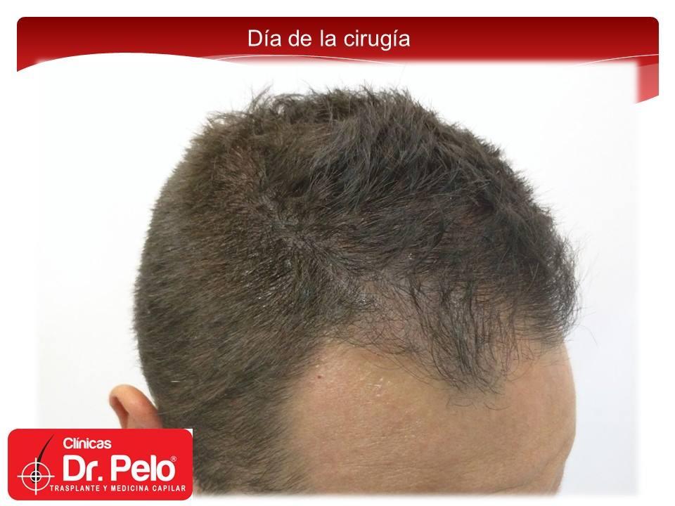 [Imagen: injerto-capilar-fue-clinicas-dr-pelo-dr-...nior-4.jpg]