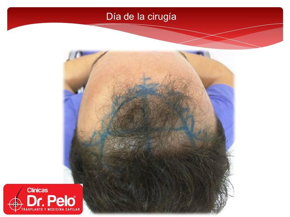 [Imagen: injerto-capilar-fue-clinicas-dr-pelo-dr-...or-5-1.jpg]
