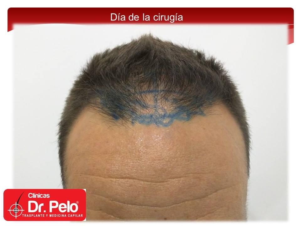 [Imagen: injerto-capilar-fue-clinicas-dr-pelo-dr-...nior-5.jpg]