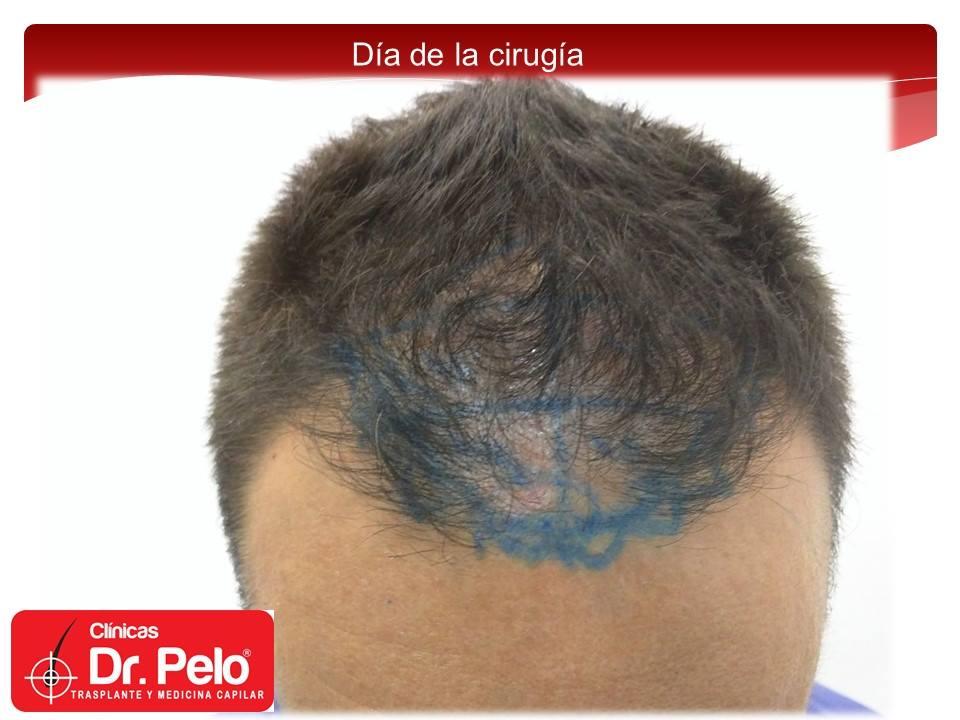 [Imagen: injerto-capilar-fue-clinicas-dr-pelo-dr-...nior-6.jpg]