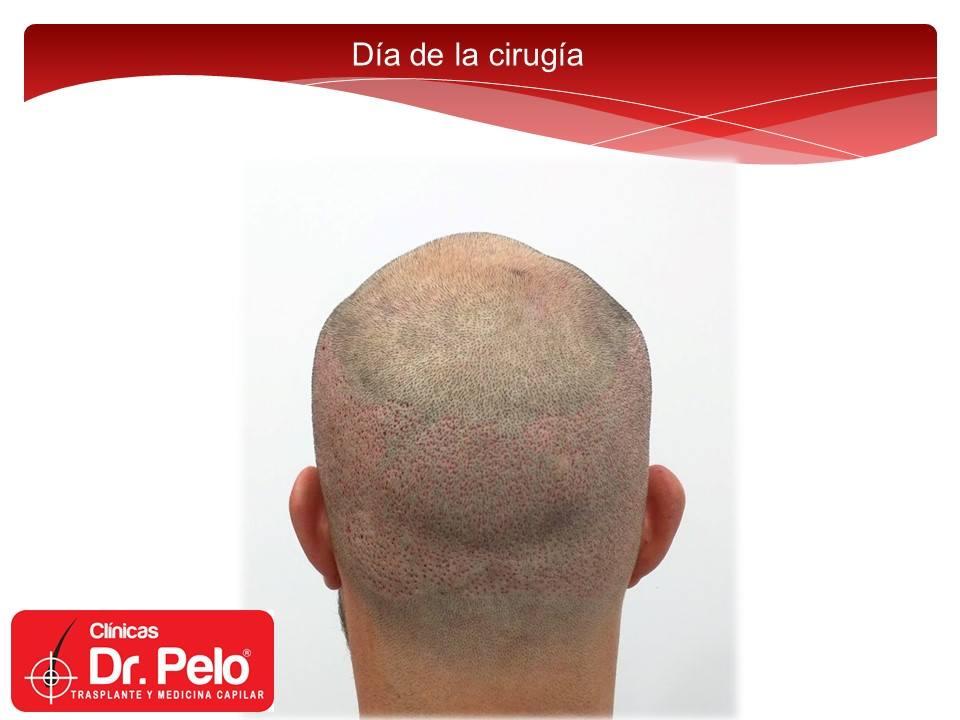 [Imagen: injerto-capilar-fue-clinicas-dr-pelo-dr-...or-7-1.jpg]