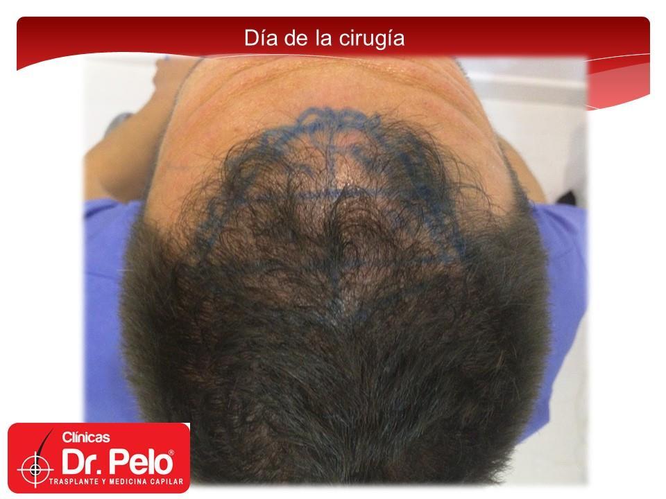 [Imagen: injerto-capilar-fue-clinicas-dr-pelo-dr-...nior-7.jpg]