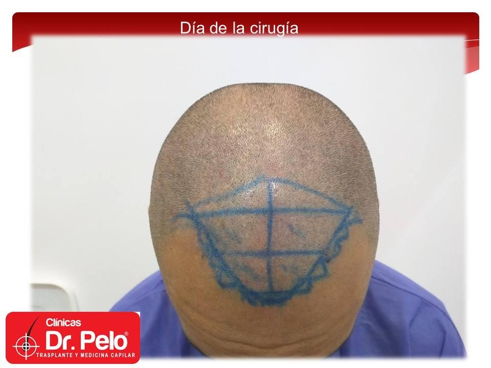 [Imagen: injerto-capilar-fue-clinicas-dr-pelo-dr-...nior-8.jpg]