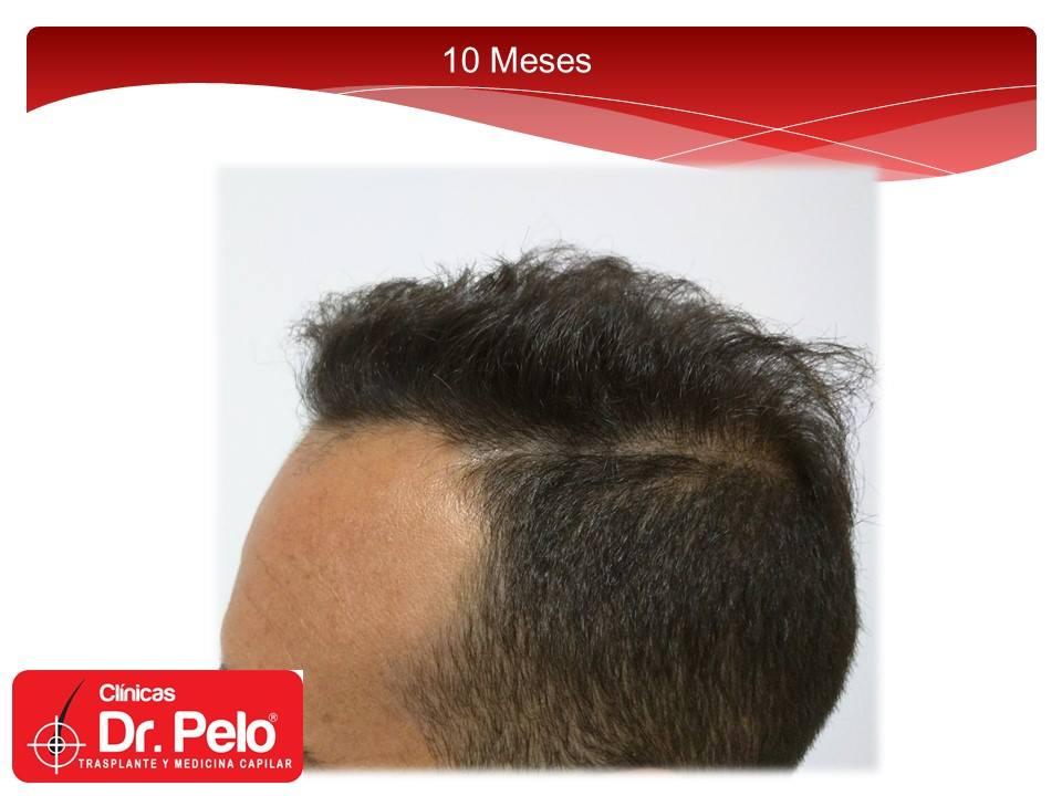 [Imagen: injerto-capilar-fue-clinicas-dr-pelo-dr-...or-9-1.jpg]