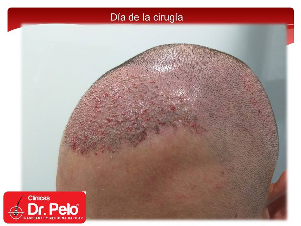 [Imagen: injerto-capilar-fue-clinicas-dr-pelo-dr-...nior-9.jpg]