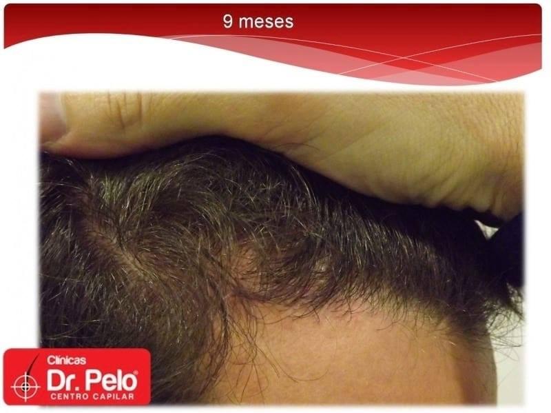 [Imagen: injerto-capilar-fue-dr-afonso-junior-tec...elo-10.jpg]