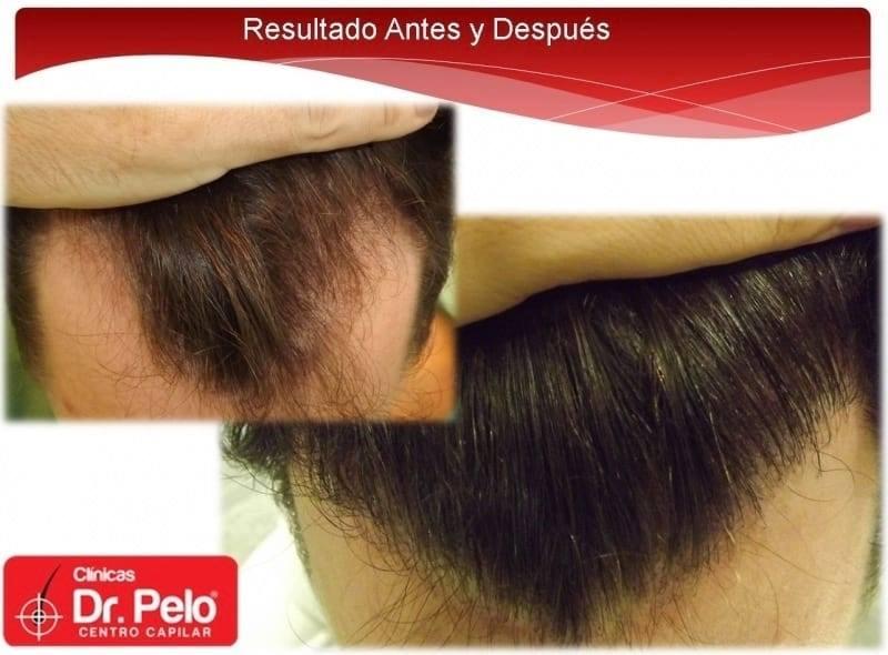 [Imagen: injerto-capilar-fue-dr-afonso-junior-tec...elo-11.jpg]