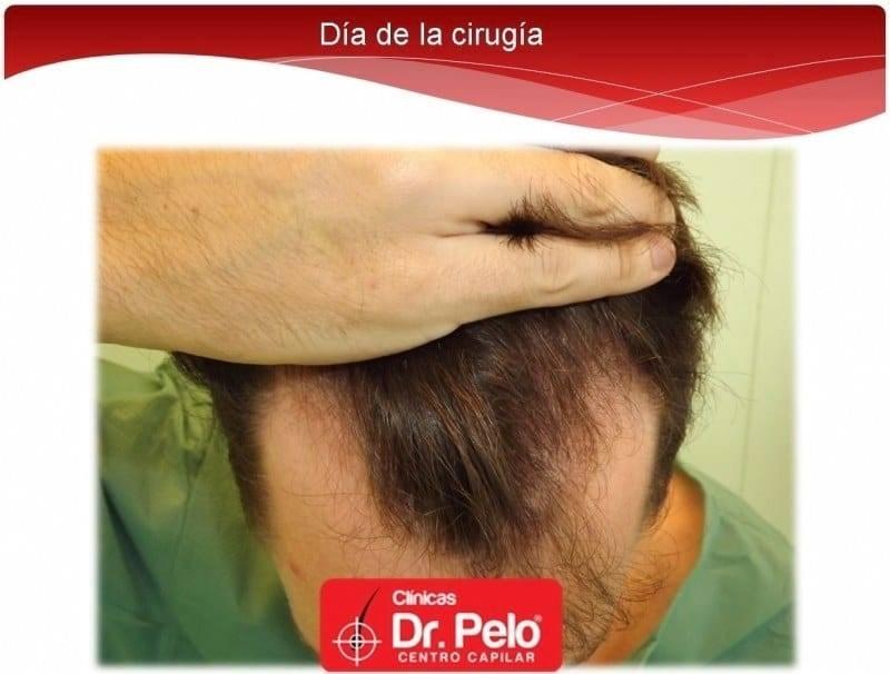 [Imagen: injerto-capilar-fue-dr-afonso-junior-tec...pelo-2.jpg]