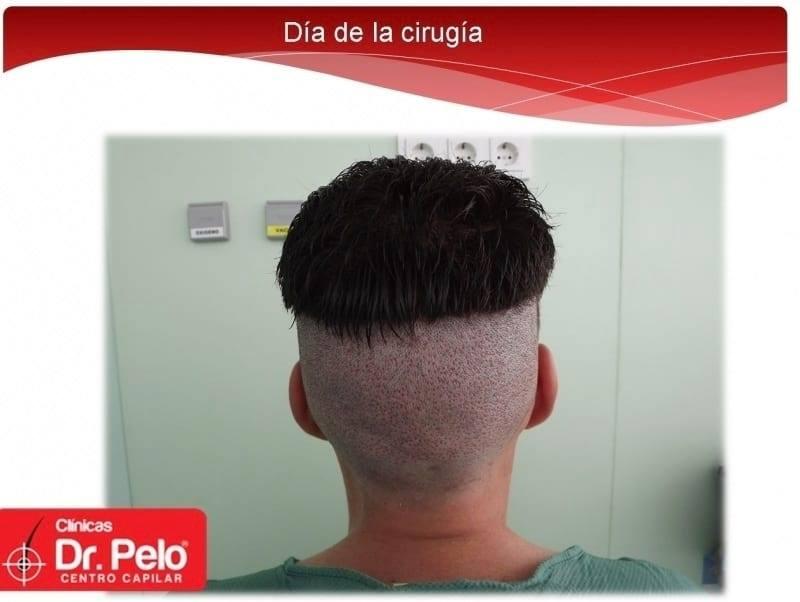 [Imagen: injerto-capilar-fue-dr-afonso-junior-tec...pelo-3.jpg]