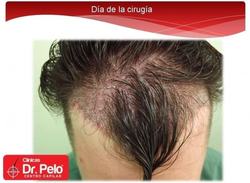 [Imagen: injerto-capilar-fue-dr-afonso-junior-tec...pelo-4.jpg]