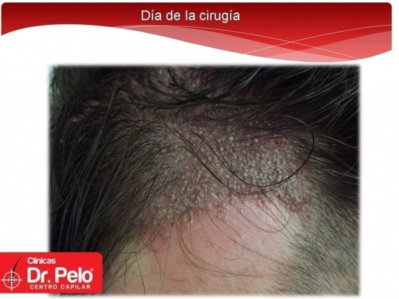 [Imagen: injerto-capilar-fue-dr-afonso-junior-tec...pelo-5.jpg]