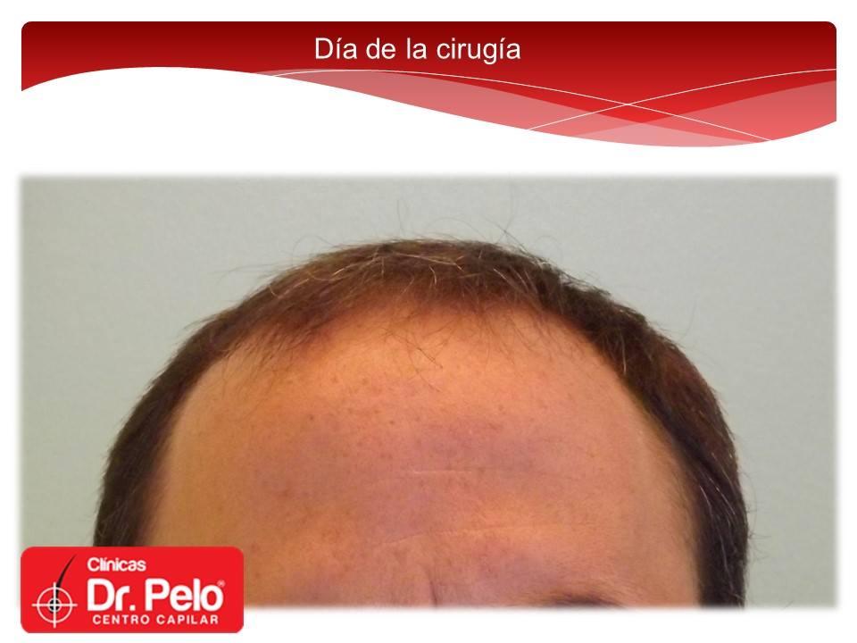 [Imagen: injerto-capilar-fue-dr-pelo-dr-afonso-junior-1.jpg]
