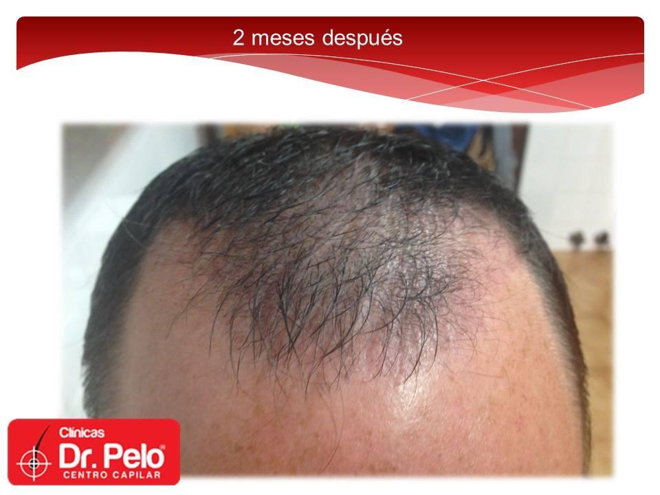 [Imagen: injerto-capilar-fue-dr-pelo-dr-afonso-junior-10.jpg]