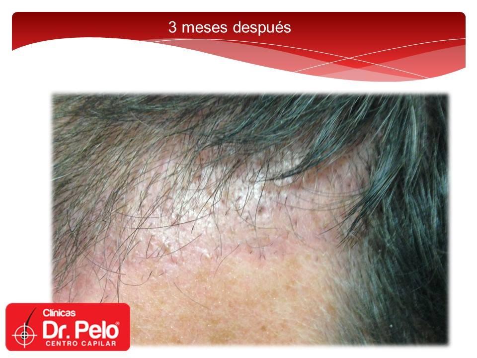 [Imagen: injerto-capilar-fue-dr-pelo-dr-afonso-junior-11.jpg]