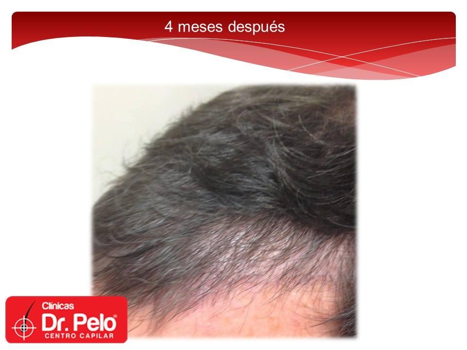 [Imagen: injerto-capilar-fue-dr-pelo-dr-afonso-junior-12.jpg]