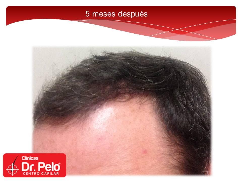 [Imagen: injerto-capilar-fue-dr-pelo-dr-afonso-junior-13.jpg]