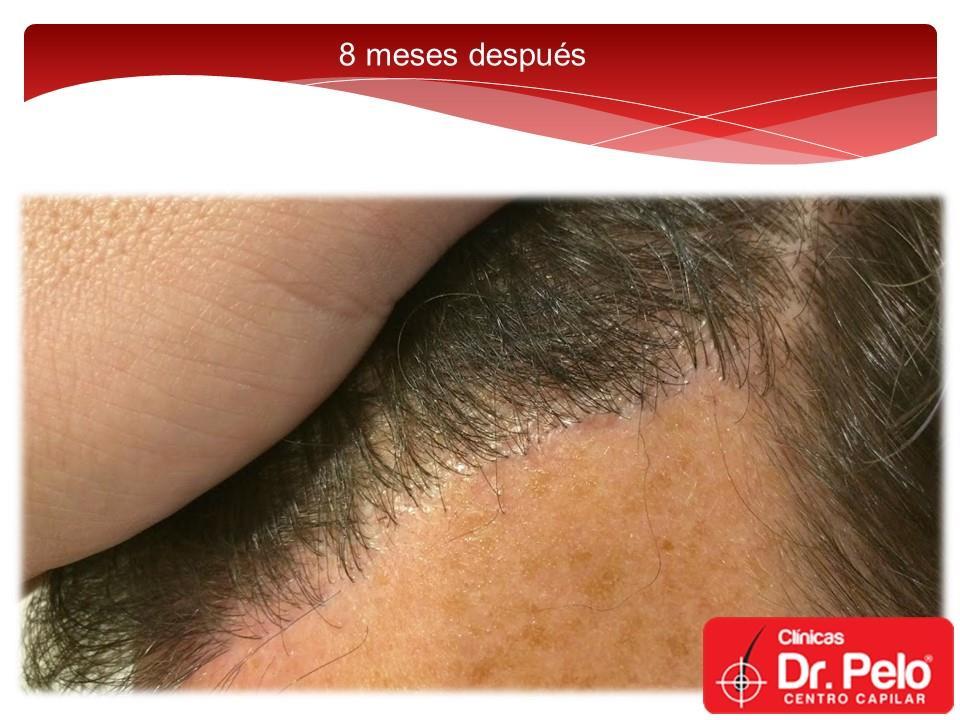 [Imagen: injerto-capilar-fue-dr-pelo-dr-afonso-junior-16.jpg]