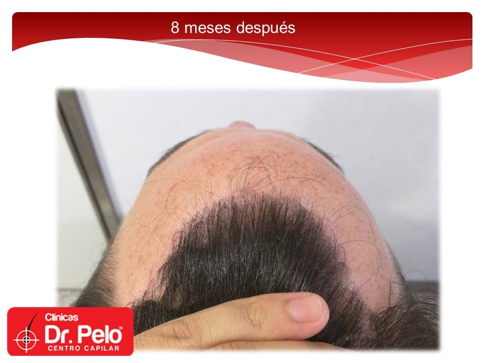 [Imagen: injerto-capilar-fue-dr-pelo-dr-afonso-junior-17.jpg]